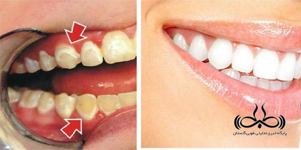 ترفندهایی که دندانهایتان را مثل مروارید سفید میکند